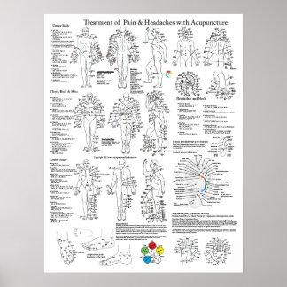 Tratamiento de la acupuntura del dolor y de los do posters