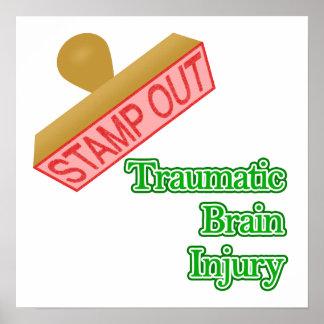 Traumatic Brain Injury Poster