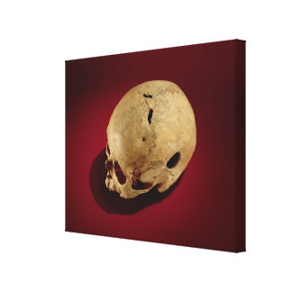 Trepanned Skull Stretched Canvas Prints