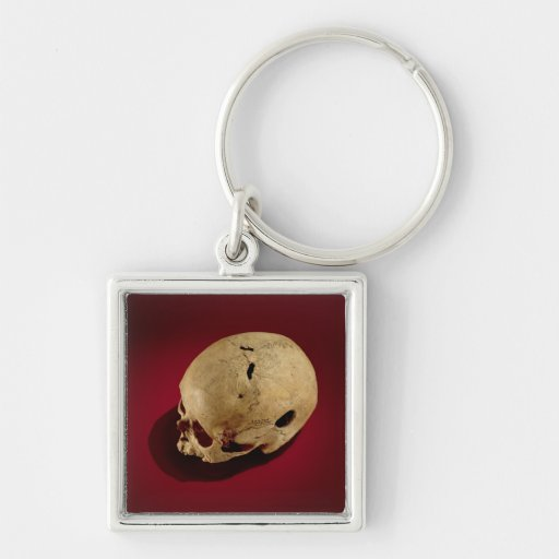 Trepanned Skull Key Chains