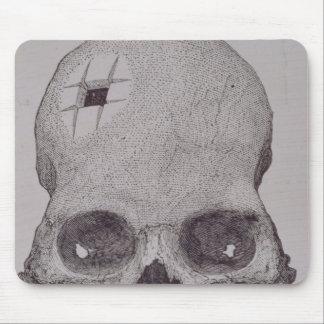 Trepanned Skull Mouse Pad