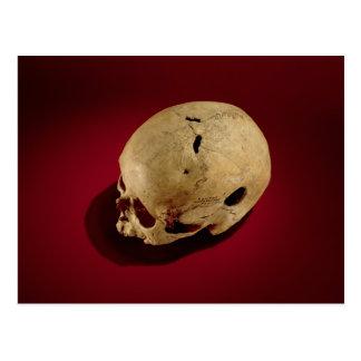 Trepanned Skull Postcard