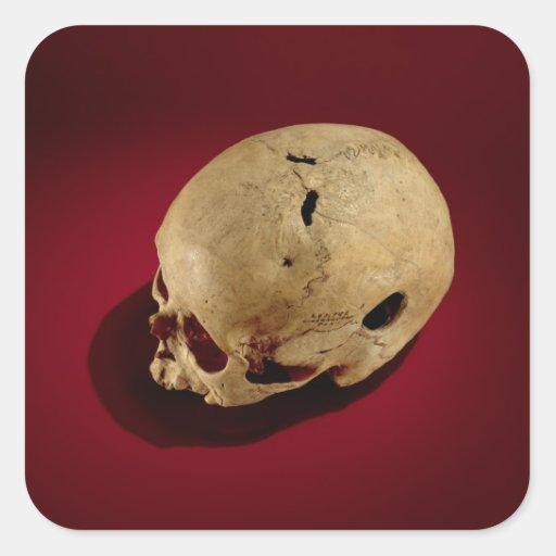 Trepanned Skull Square Stickers