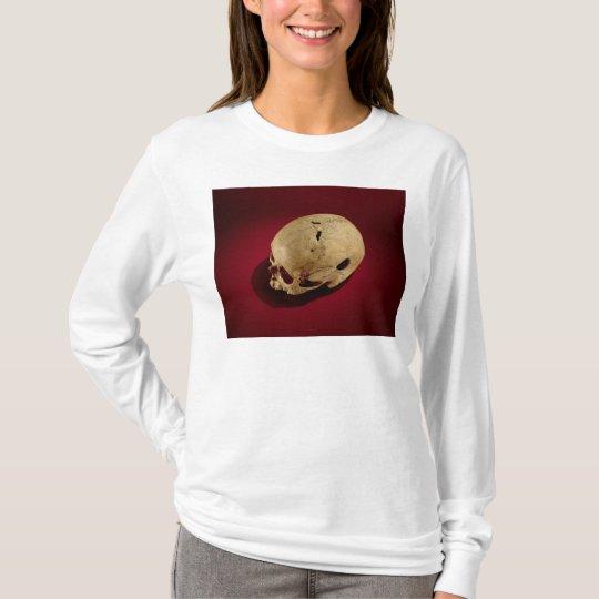 Trepanned Skull T-Shirt