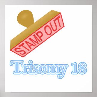 Trisomy 18 poster