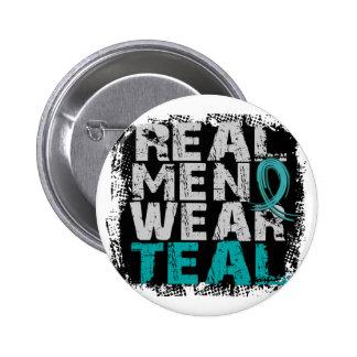 Trullo real del desgaste de hombres del cáncer ová pins