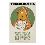 Tuberculosis Posters