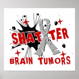 Tumores cerebrales del fragmento póster