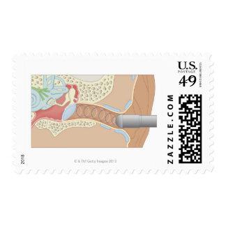 Tympanometry Stamp