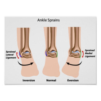 Types of ankle sprains  Poster