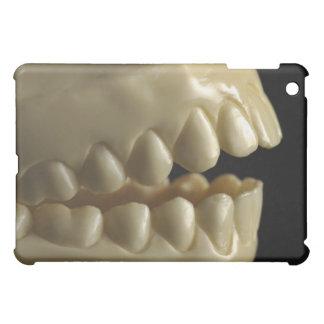Un modelo dental