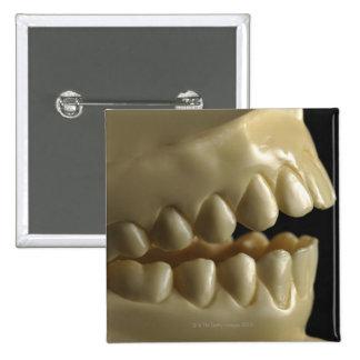 Un modelo dental pin cuadrado