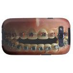 Un modelo dental y apoyos de los dientes galaxy SIII carcasa