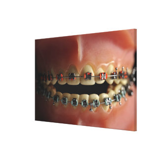 Un modelo dental y apoyos de los dientes lona estirada galerias