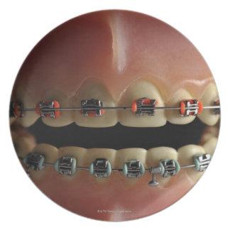 Un modelo dental y apoyos de los dientes plato