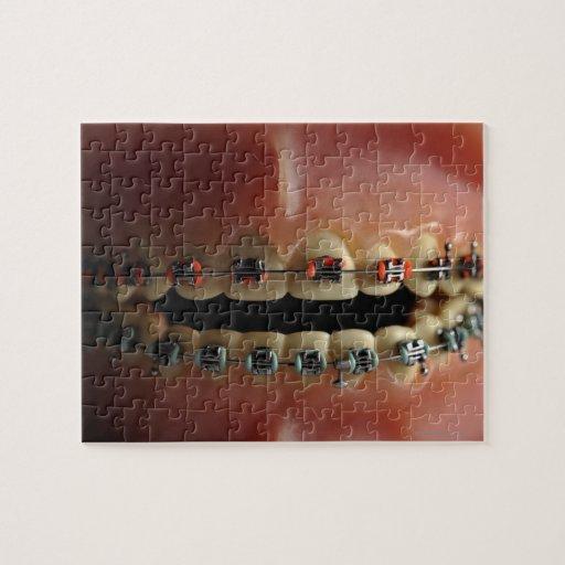 Un modelo dental y apoyos de los dientes puzzles