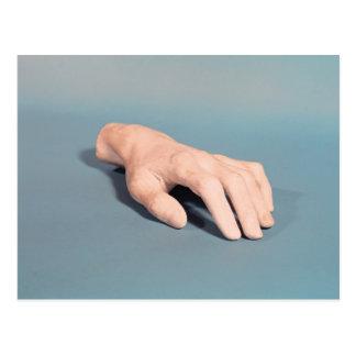 Un molde de la mano de Federico Chopin Tarjetas Postales