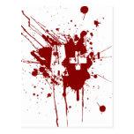 Un tipo de sangre positivo para los vampiros y los tarjetas postales