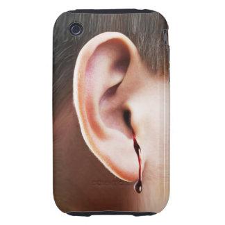 """Until Ear Bleeds"" iPhone 3 Case"