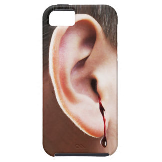 """""""Until Ear Bleeds"""" iPhone 5 Vibe There Case"""