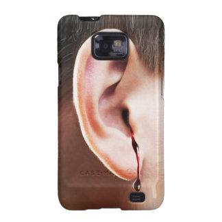 """Until Ear Bleeds"" Samsung Galaxy S2 Case"
