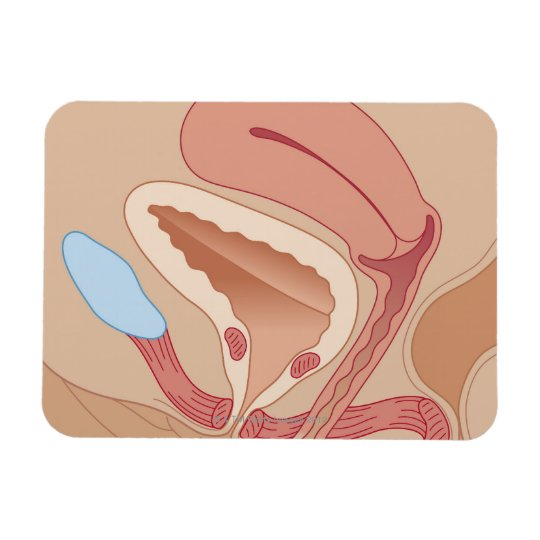 Urinary Incontinence Magnet