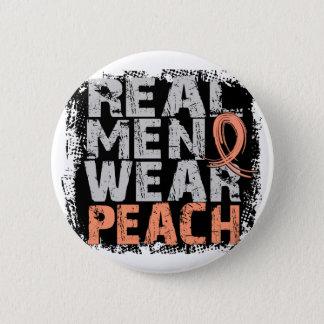 Uterine Cancer Real Men Wear Peach Pinback Button