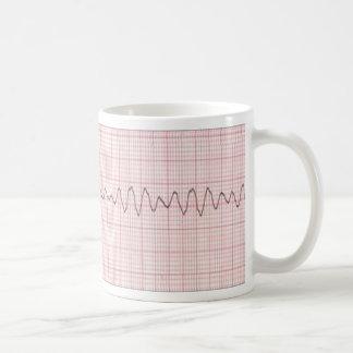 V Fib Coffee Mug