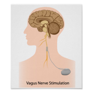 Vagus nerve stimulation therapy Poster