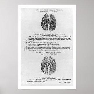 Vascular system of the brain poster