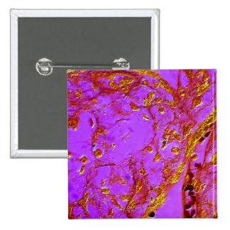 Vellosidades placentarias pin cuadrado