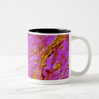 Vellosidades placentarias taza de café de dos colores