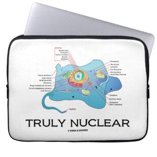 Verdaderamente nuclear (eucariota animal de la funda ordendadores