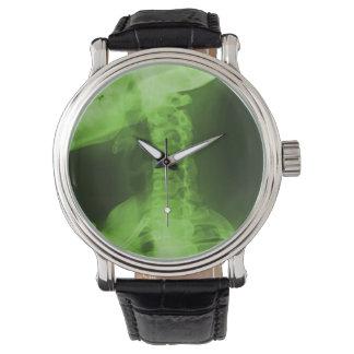 Verde radiactivo radiografiado 2 reloj de mano