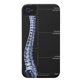 Vertebral Column 4 iPhone 4 Cases