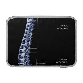Vertebral Column 4 Sleeve For MacBook Air