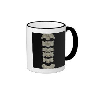 Vértebras cervicales tazas de café