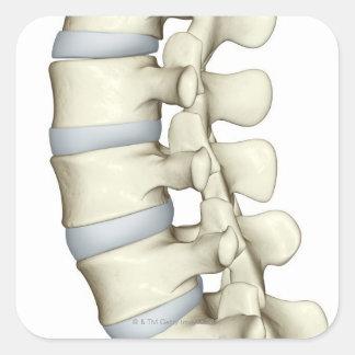 Vértebras lumbares calcomania cuadradas personalizada