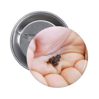Very Tiny Black Frog About Size Of Fly In The Hand Pinback Button