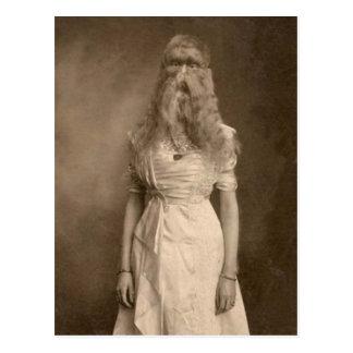 Victorian Weird a Woman Facial Hair Postcard