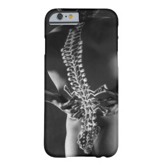 View of spinal chord barely there iPhone 6 case