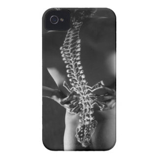 View of spinal chord iPhone 4 Case-Mate cases