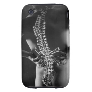 View of spinal chord tough iPhone 3 case