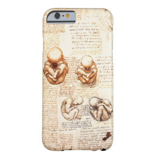 Views of a Fetus in the Womb,Ob-Gyn Medical Barely There iPhone 6 Case