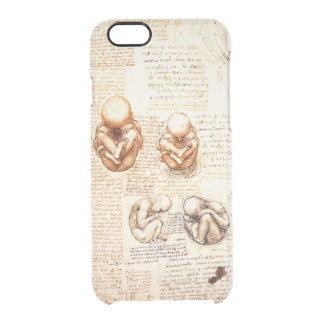 Views of a Fetus in the Womb,Ob-Gyn Medical Clear iPhone 6/6S Case