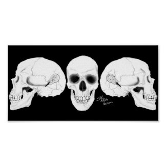 Views The Skull With The CIs Removed Poster