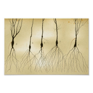 Vintage 1886 Central Nervous System Nerves Poster