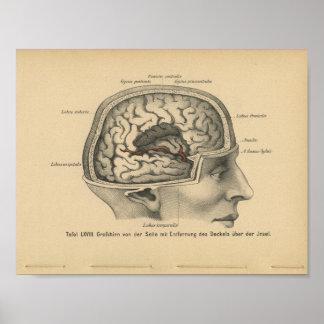 Vintage 1888 German Anatomy Print Skull Brain