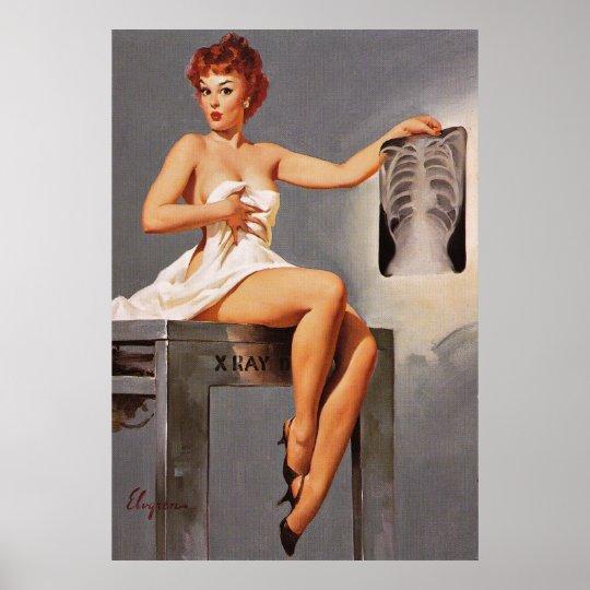 Vintage Gil Elvgren X Ray Radiography Pinup Girl Poster