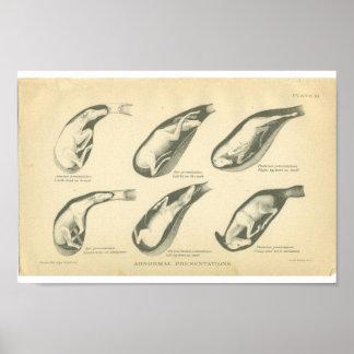 Vintage Horse Anatomy Print Foal Presentation